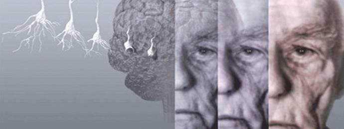Estimulación visual, una nueva puerta para tratar el Alzheimer