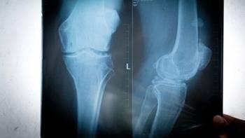 Artrosis de rodilla, ¿cómo evitar el dolor y mantener la movilidad?